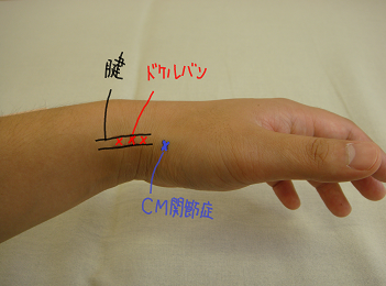 手首の痛み、ドケルバン病の痛みの場所
