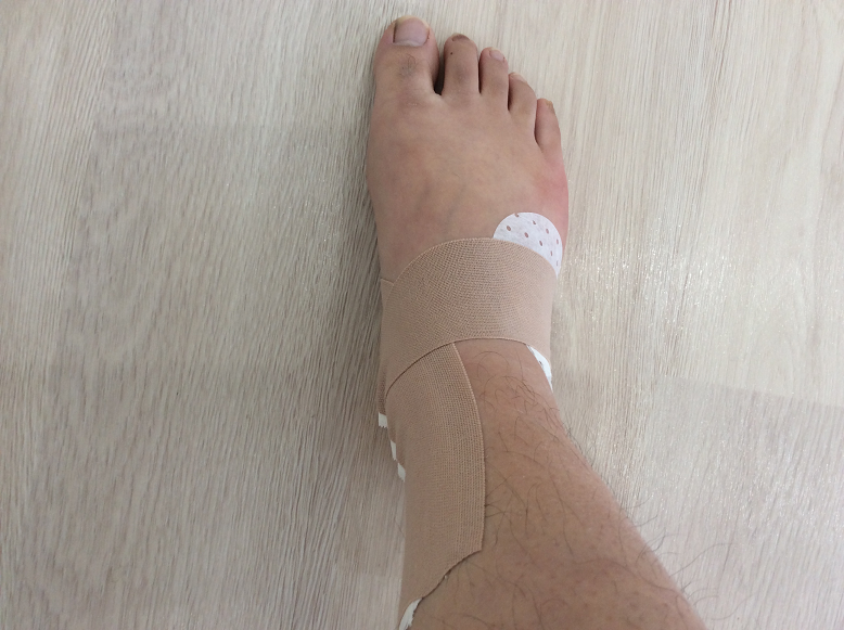 足首の捻挫のテーピング