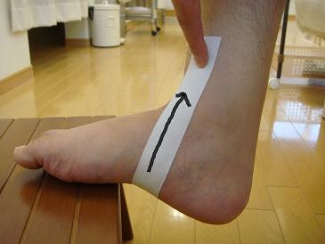 外 テーピング 脛骨 痛 有 性