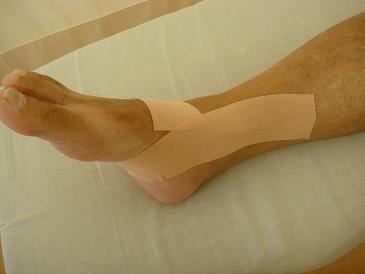 足首捻挫、足底腱膜炎のテーピング
