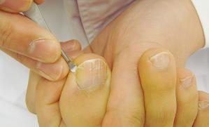 巻き爪の最新治療方法
