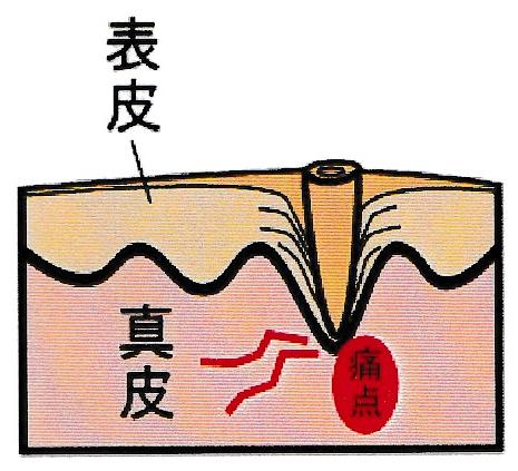 魚の目の痛みの原因
