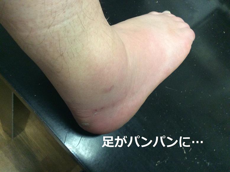 足首の捻挫で足が脹れる