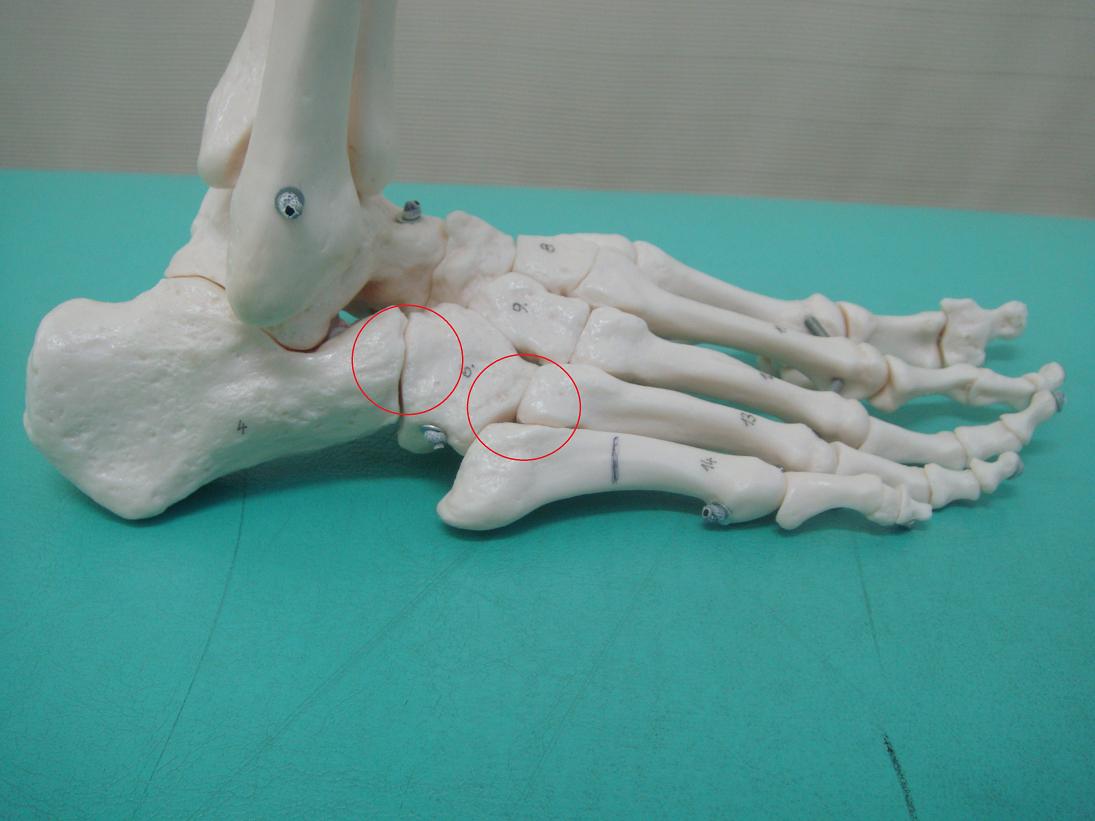 足首の捻挫-模型を使った説明