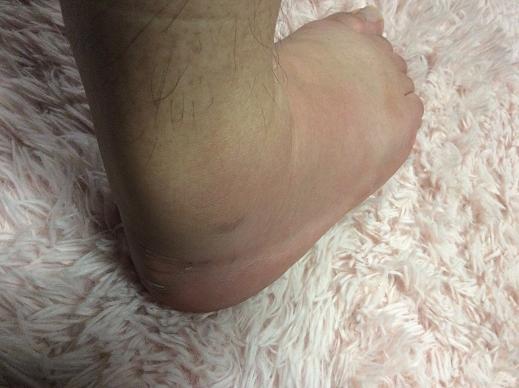 足首の捻挫-ウォーキングの後足が脹れる