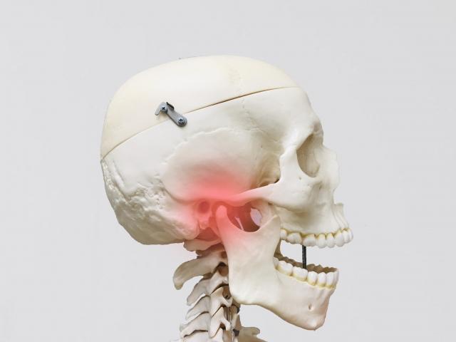 顎関節症・あごが痛い