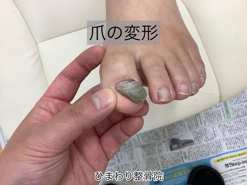 爪の変形を改善