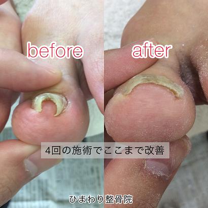 最新施術で巻き爪の痛みを改善