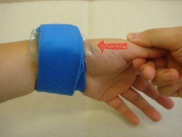 手首の痛みの治療1