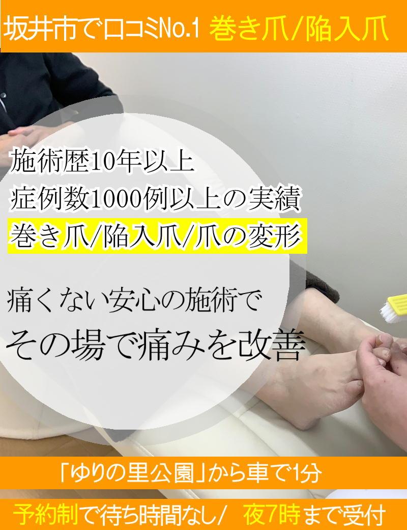 巻き爪/陥入爪の痛みを最新技術で改善