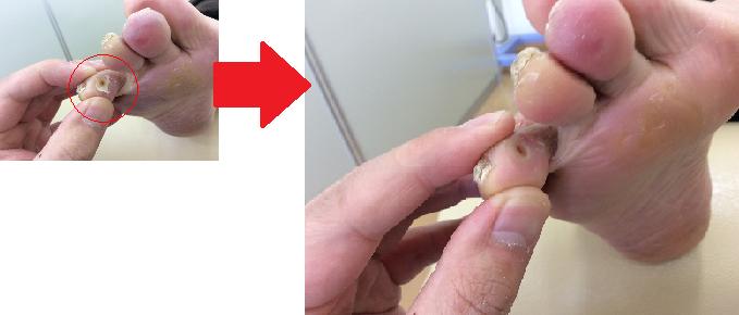 魚の目の施術前・施術後5