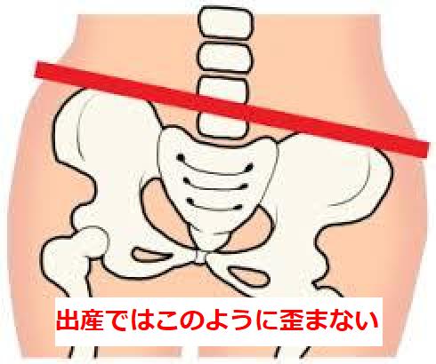 出産時の骨盤の歪み