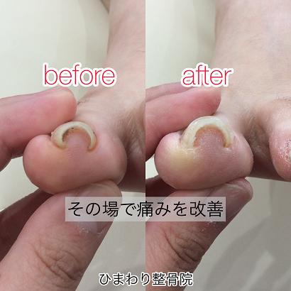 最新施術で巻き爪の痛みを改善/症例-ひまわり整骨院
