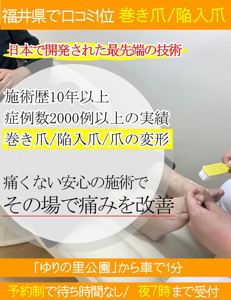 巻き爪/陥入爪の痛みを改善-坂井市ひまわり整骨院