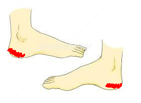 足底筋膜炎の痛い場所