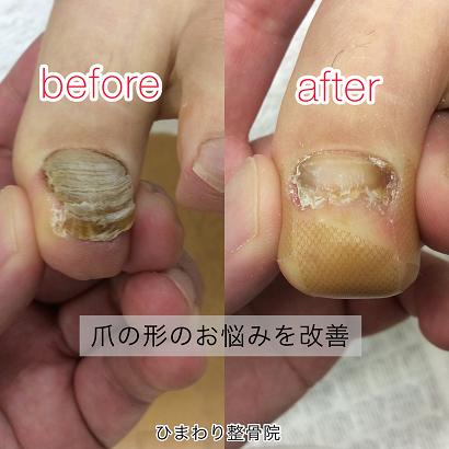 爪の変形の改善例