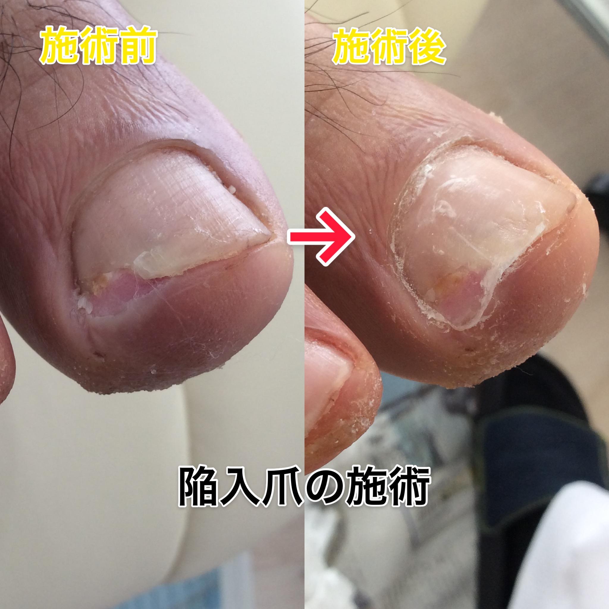 巻き爪の痛みを最新治療で改善