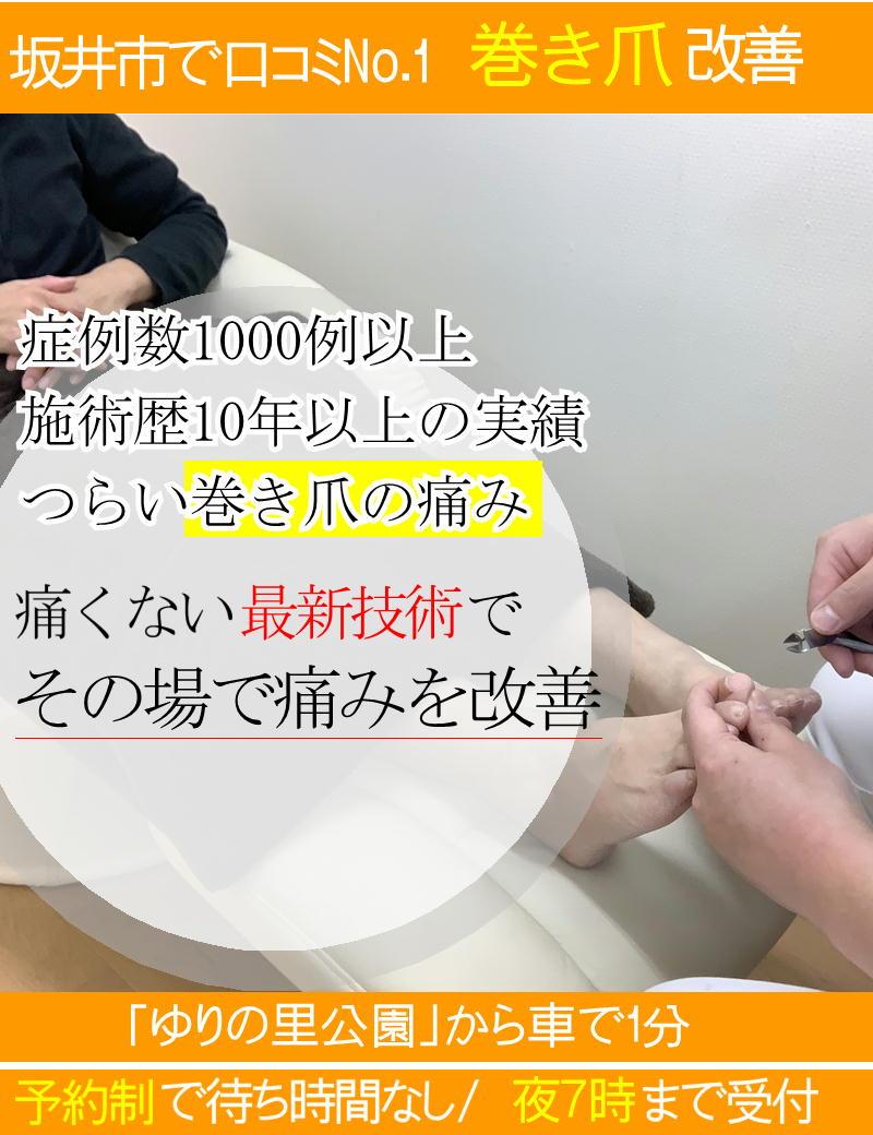 巻き爪の痛みを改善する最新技術