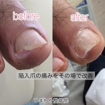 陥入爪の痛みを改善-ひまわり整骨院