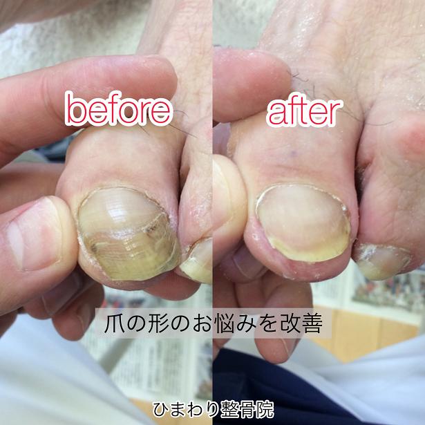 最新施術で爪の変形・肥厚を改善-ひまわり整骨院