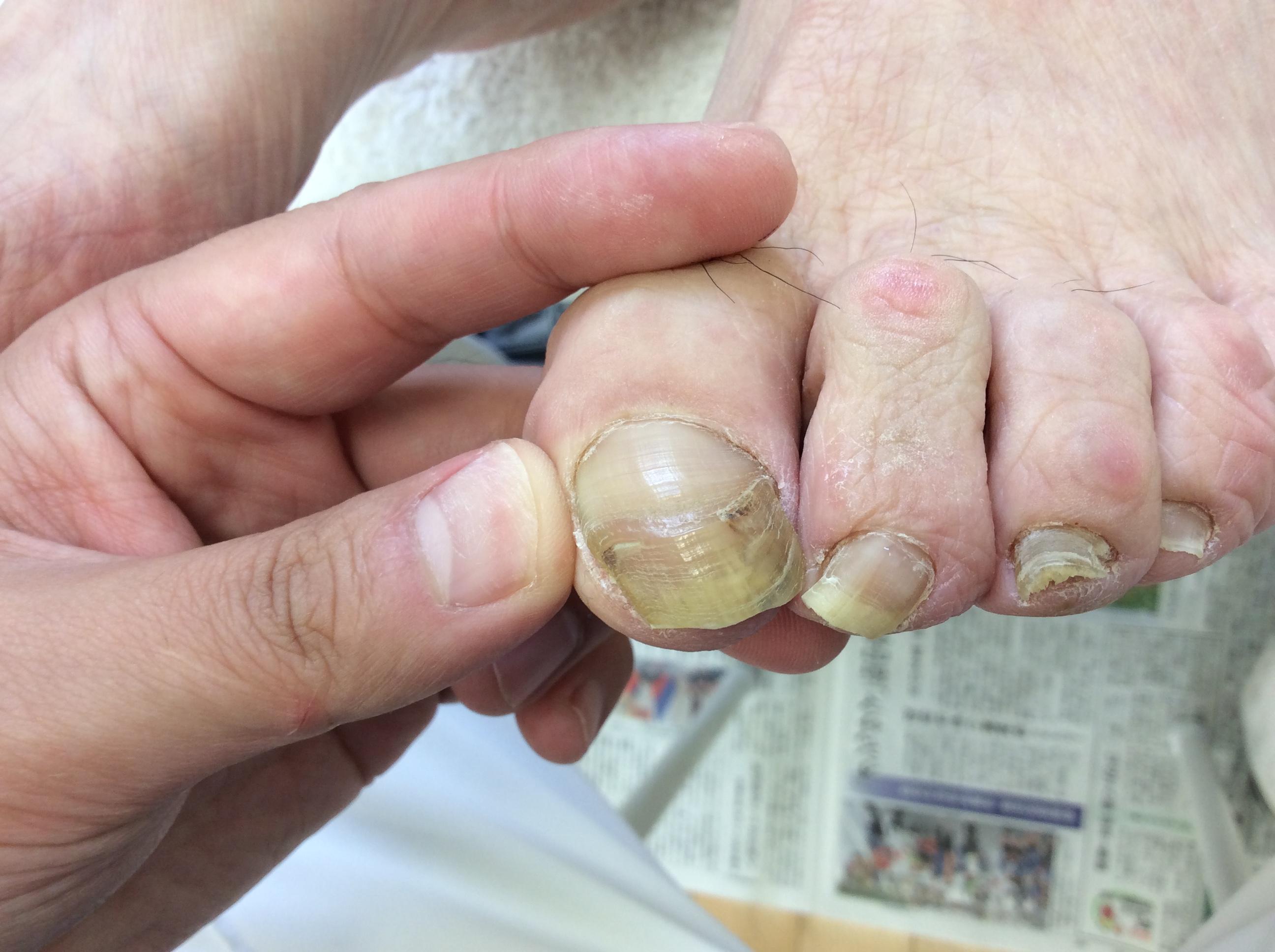 変形した爪