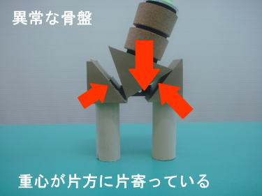 異常な骨盤の状態を模型を使って説明1