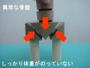 異常な骨盤の状態を模型を使って説明2