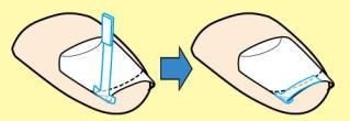 巻き爪の施術方法1