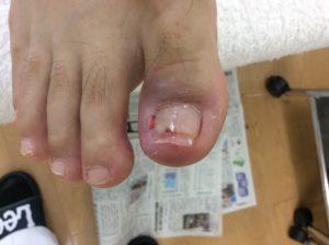 化膿している巻き爪が施術で改善