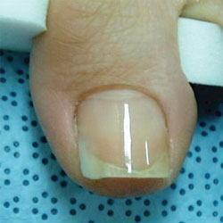 巻き爪施術後の写真2
