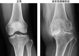 変形性膝関節症のレントゲン写真